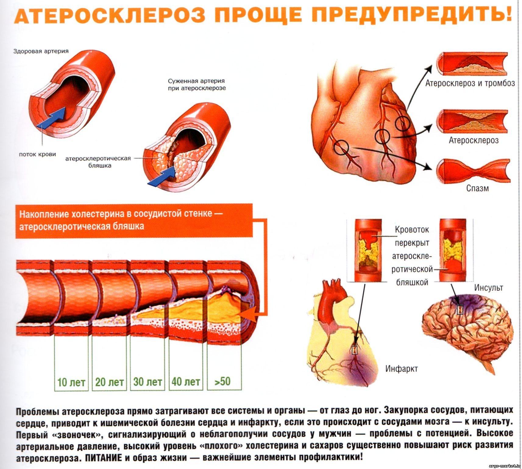 Атеросклероз, гипертония - гордиться нечем! - Наш Днепропетровск